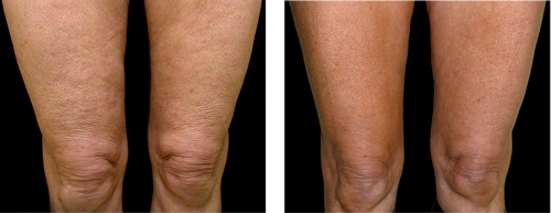 estetika-skin-laser-specialists-thermage-legs